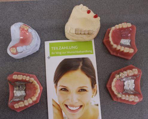 Zahnersatz - Die Hilfe bei kaputten Zähnen