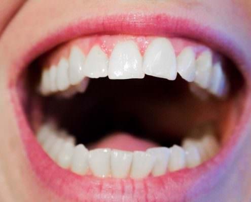 Lesen Sie hier, wie Sie Mundgeruch effektiv behandeln können.