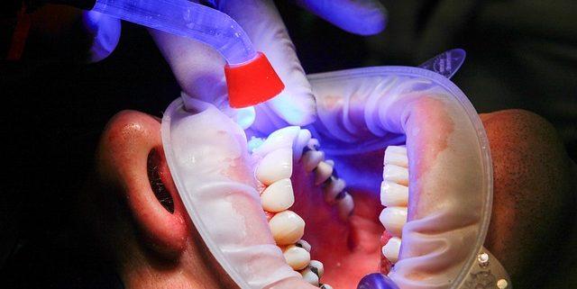 Dr. Gollnow ist Ihr kompetenter Zahnarzt in Bochum Innenstadt.